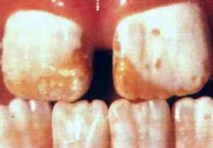 Colquhoun Dental Fluorosis 2