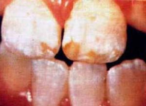 Colquhoun Dental Fluorosis